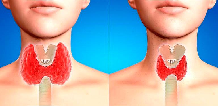 Приводим-щитовидку-в-норму